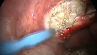 Extraccion de amigdalas