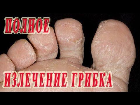 Излечить грибок ног в домашних условиях