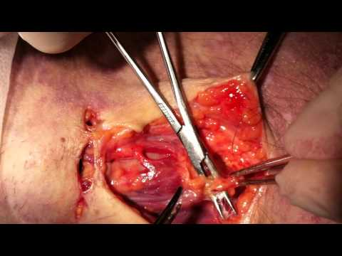 Tracheotomy part 2/5