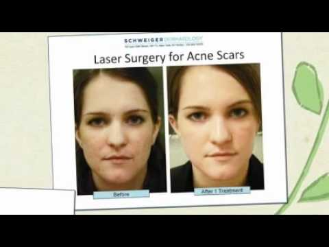 acne laser surgery NYC
