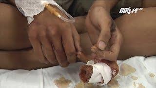 (VTC14)_Bị đứt lìa 1 đốt ngón tay chỉ vì sửa xích xe đạp