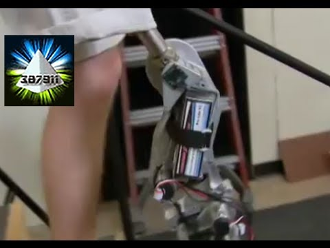 Prosthetic Leg ★ Bionic Leg 2013 ♦ Leg Prosthesis Makes Amputee Faster on his Feet – Science Nation