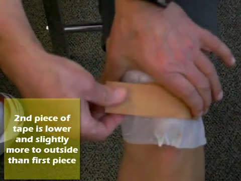 Taping for runner's knee (specifically with pain at bottom of kneecap)