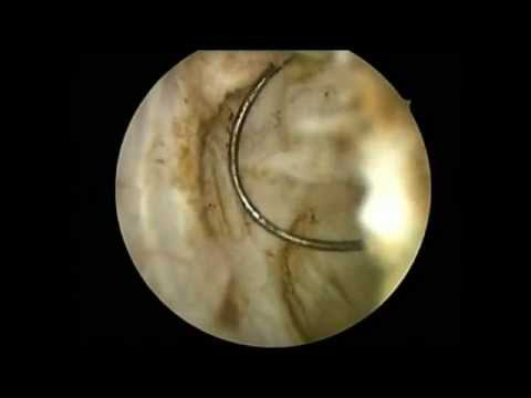 hysteroscopic myomectomy for type 2 fibroid
