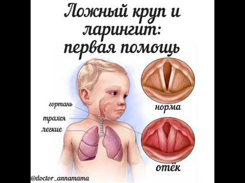 Ларинготрахеит у детей симптомы лечение в домашних условиях