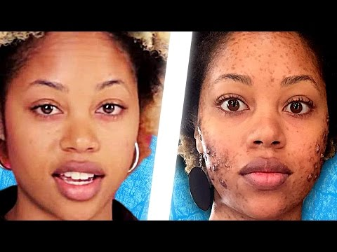 People Live With Acne For A Day