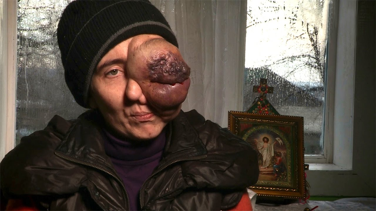 Tragic Story Of A Woman With A Massive Eye Tumor
