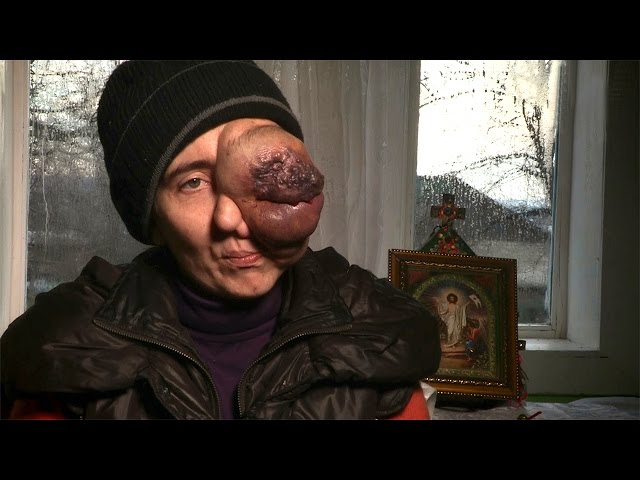 The Woman With A Tumour Growing From Her Eye: BODY BIZARRE