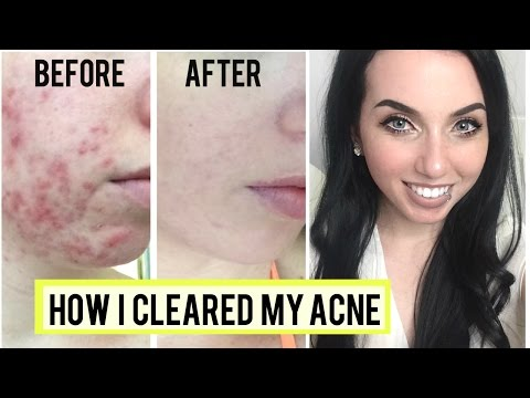 How I Got Rid Of Cystic Acne Skincare Favorites Clear