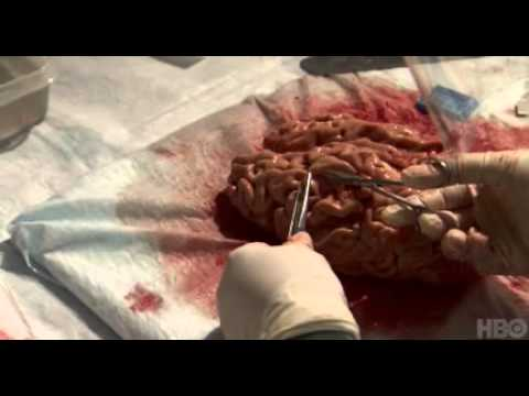 Brain Autopsy At Banner Sun Health Research Institute video