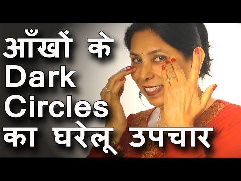 आँखों के dark circles का घरेलू उपचार । Dark circles under eyes home remedy in Hindi