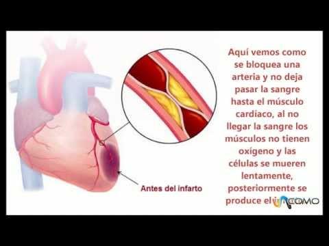 Por qué tenemos un infarto de miocardio - YouTube