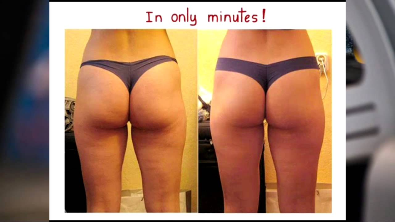 Untoned Arms Cellulite Treatment - Natural
