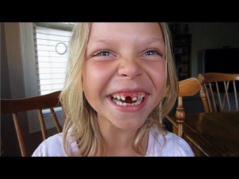 Дети удаляют себе зубы
