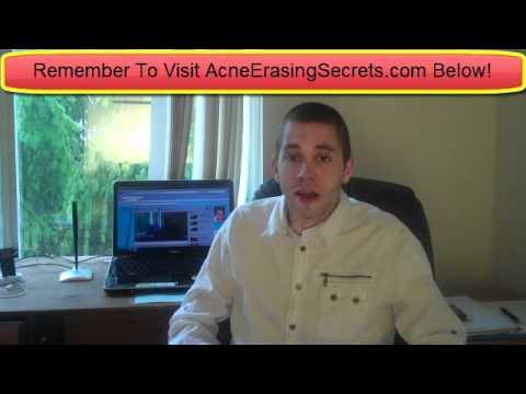 Light Treatment For Acne