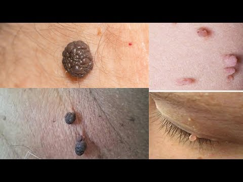 REMOVE SKIN TAGS IN 1 NIGHT