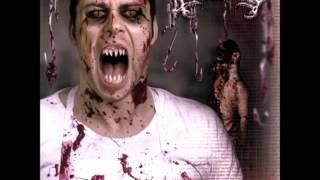Watch Avulsed Devourer Of The Dead video