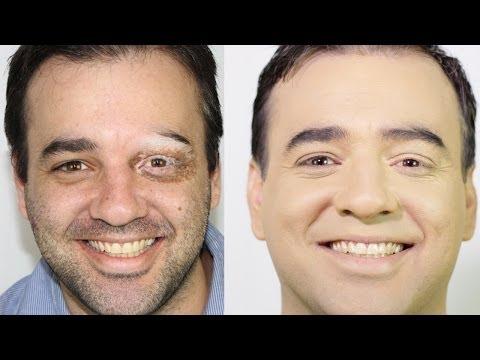 La desaparición de las manchas de pigmento por la cosmética