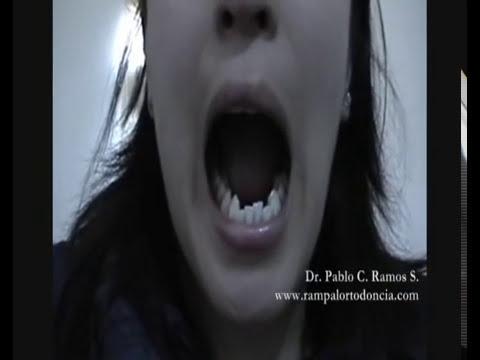 Apertura Normal y Patologica