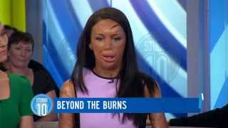Turia Pitt: Beyond The Burns | Studio 10