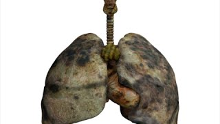 How to Detox Smokers Lungs