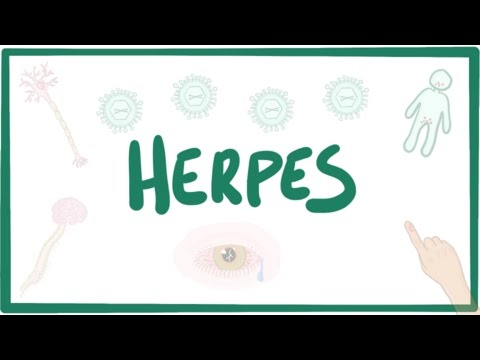 Herpes (oral & genital) - causes, symptoms, diagnosis, treatment, pathology thumbnail