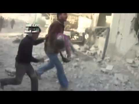 Syria 05-11-2012 Damascus- Child badly hit by Assad forces