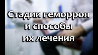 Стадии геморроя (1,2,3,4): фото и их лечение для женщин и мужчин