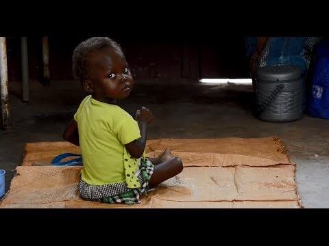Displaced by violence, children face another threat: malnutrition