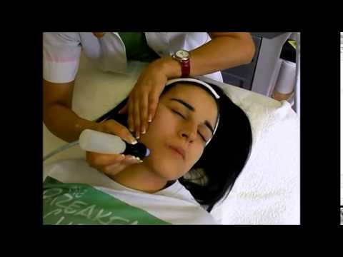 Microdermabrasion for Acne with Milvia Pili