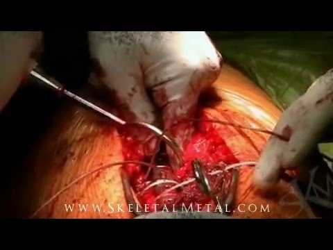 Skeletal Metal Trauma Surgery