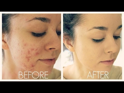 Acne Coverage Foundation Routine