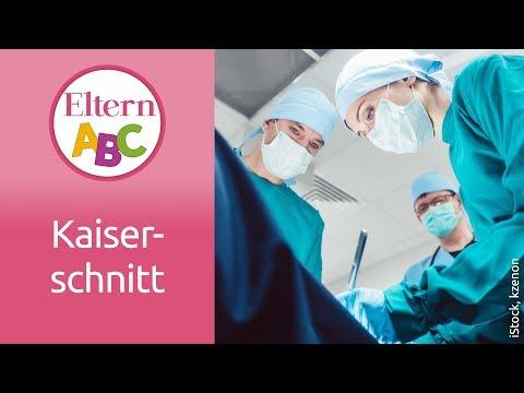 Kaiserschnitt: Schmerzmittel und Stillen | Schwangerschaft & Geburt | Eltern ABC | ELTERN