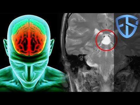 Mystiset aivomme   Onko meillä vapaata tahtoa?