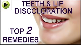Teeth & Lip Discoloration - Natural Ayurvedic Home Remedies