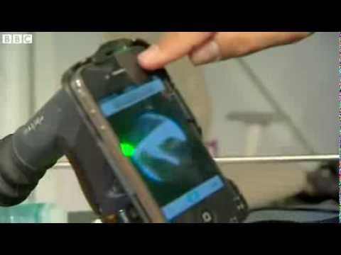 Ultrasound scan and health check using your smartphone