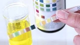 Levitra In A Urinalysis