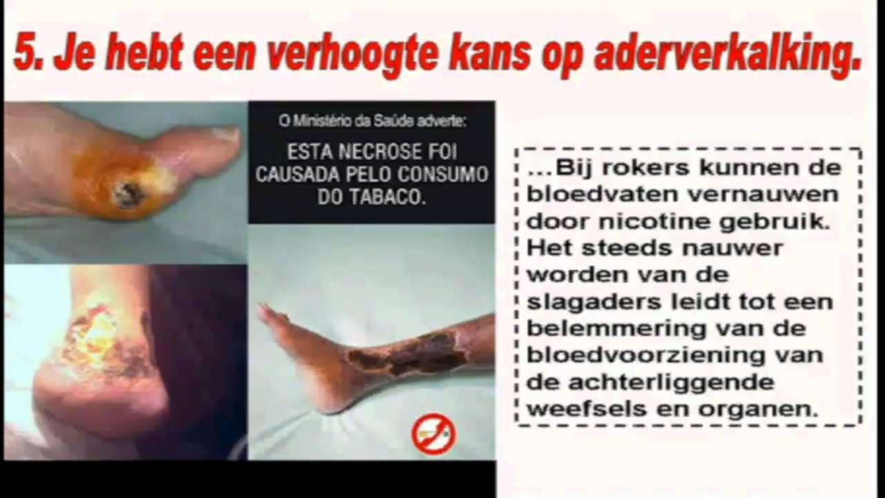 Gevolgen Van Roken Stoppen Met Roken Gevolgen