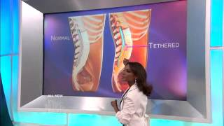 Tethered Cord Syndrome Explained Medical Course