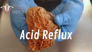The Anatomy of Acid Reflux