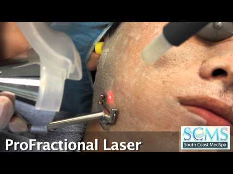 Irvine,CA Male Asian Acne Scar Removal with Before/After Photos