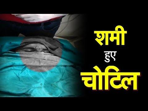 शमी का एक्सीडेंट, सिर पर आयी चोट | Sports Tak