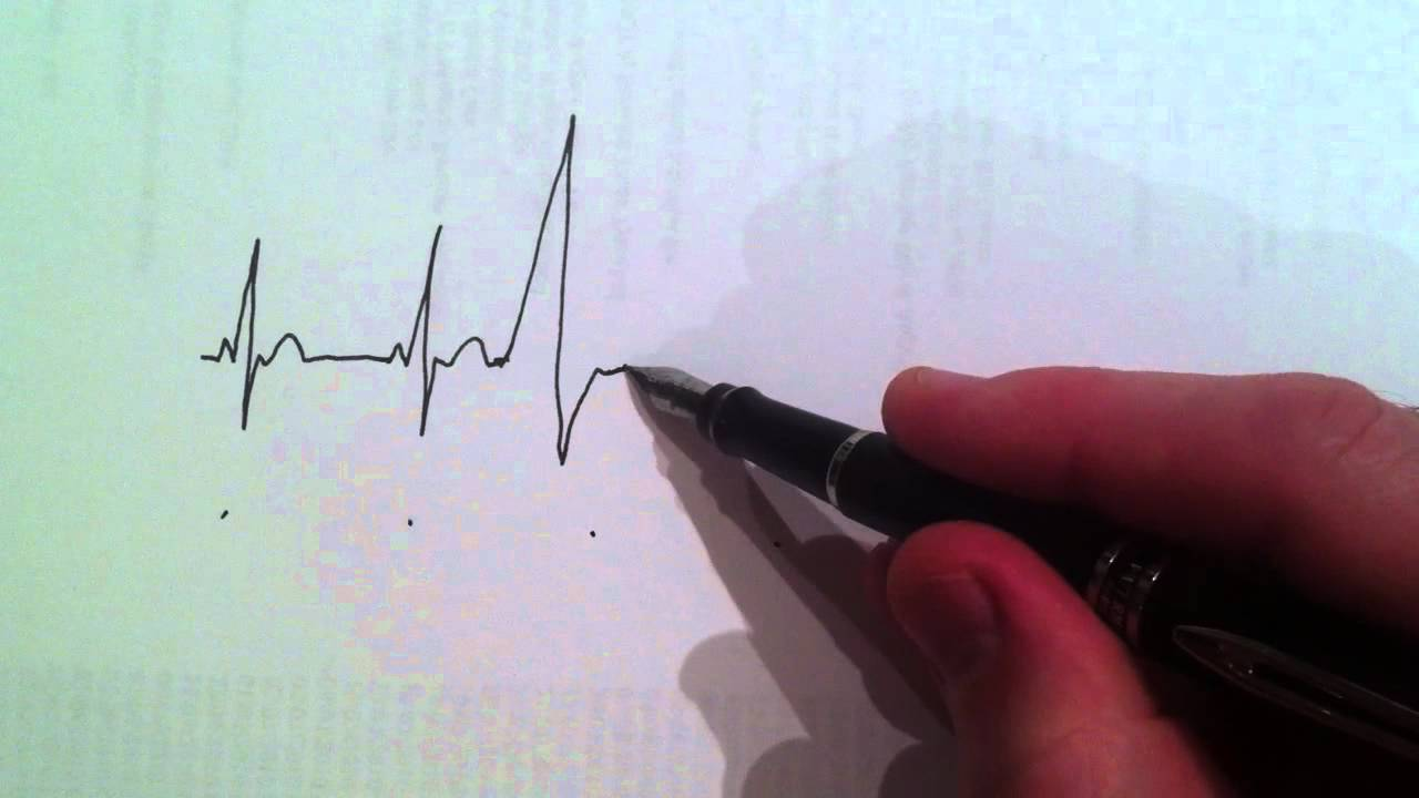 Ventricular Ectopic Beats a Ventricular Ectopic Beat