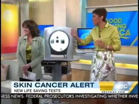 Skin Analysis for potential skin cancer