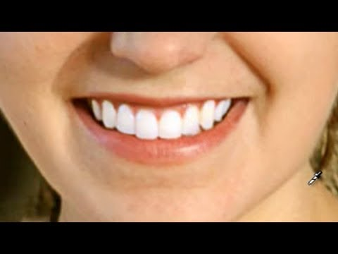 Photoshop - Foto-Manipulacin - Blanquear Dientes en Photoshop