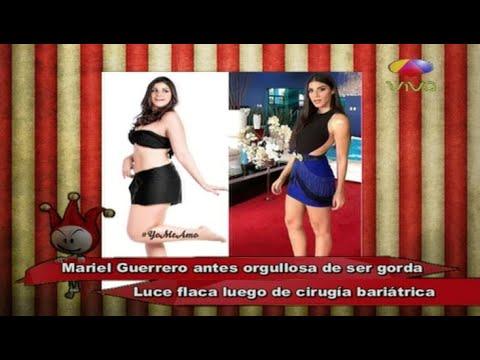 Los Cirqueros: El Antes y Después de Mariel Guerrero Luego De Hacerse La Bariátrica