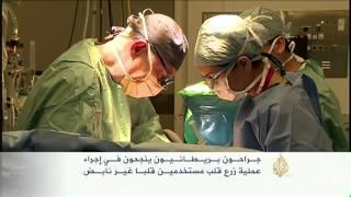 بريطانيون ينجحون في إجراء عملية زرع قلب غير نابض