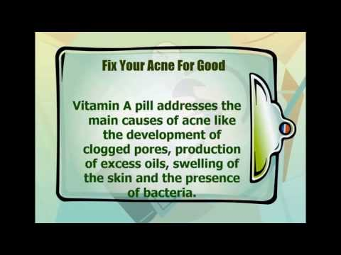 Treating Cystic Acne with Vitamin A Pill