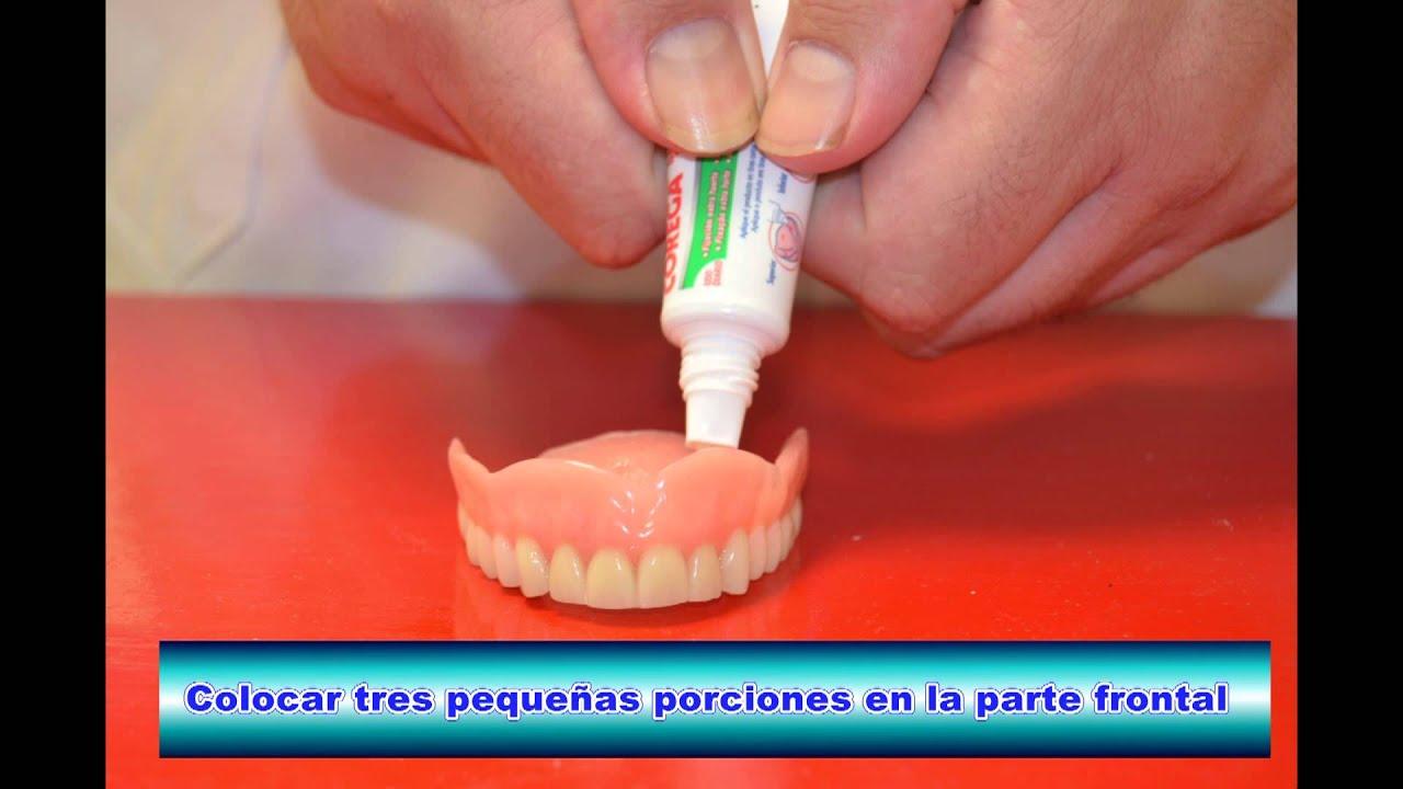 Чем склеить зубной протез в домашних условиях Домашний 9
