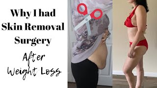 Why I had Plastic Surgery Skin Removal after Weight Loss Surgery ????✂